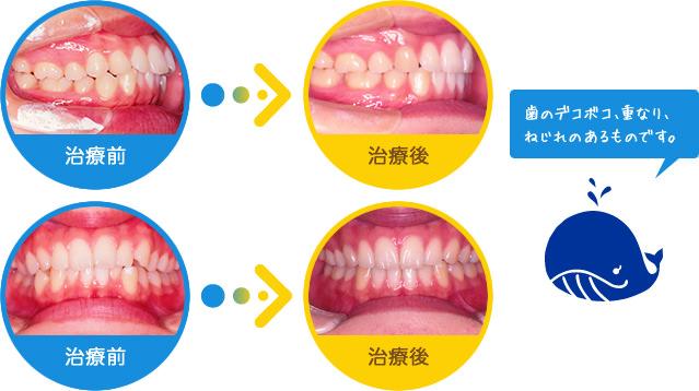 乱ぐい:歯のデコボコ、重なり、ねじれのあるものです。