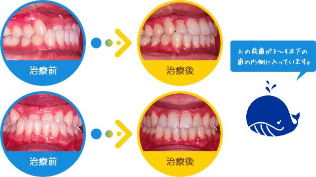 うけ口:上の前歯が3~4本下の歯の内側に入っています。