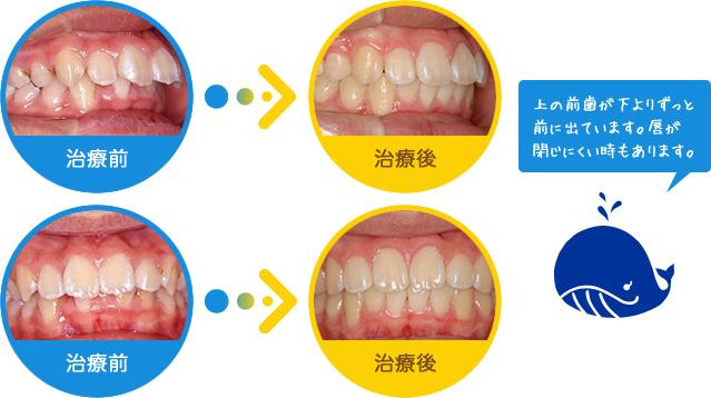 出歯:上の前歯が下よりずっと前に出ています。唇が閉じにくい時もあります。