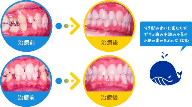 空隙歯列:すき間のあいた歯ならびです。歯の本数の不足や小形の歯のためになります。