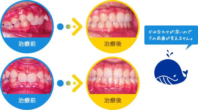 過蓋咬合:かみ合わせが深いので下の前歯が見えません。