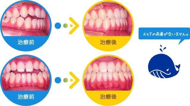 開口:上と下の前歯が合いません。